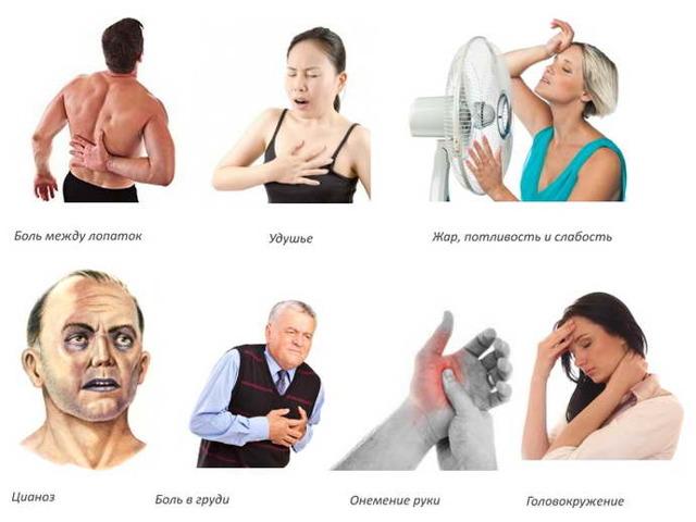 Грудной остеохондроз - симптомы. Ощущение боли в сердце