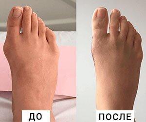 Мазь от косточки на большом пальце ноги - список лучших препаратов