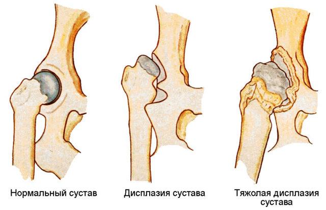 Дисплазия тазобедренных суставов у детей - что это такое