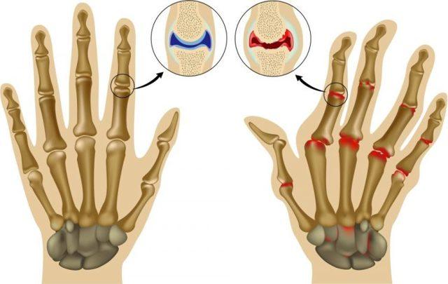 Артрит пальцев рук - лечение народными средствами эффективно
