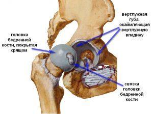 Перелом вертлужной впадины - симптомы, лечение и последствия