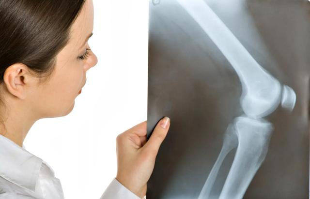 Периартрит коленного сустава - что это такое, симптомы и лечение