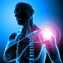 Плечелопаточный периартрит - симптомы и лечение