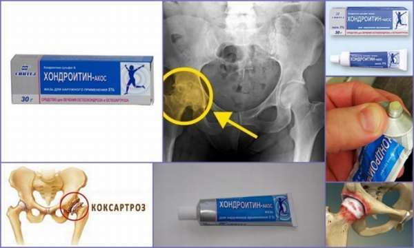 Хондропротекторы при коксартрозе тазобедренного сустава