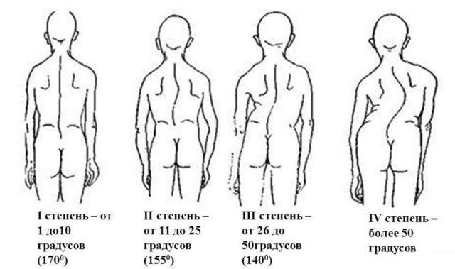 Инвалидность при сколиозе 2, 3 и 4 степени - какая группа