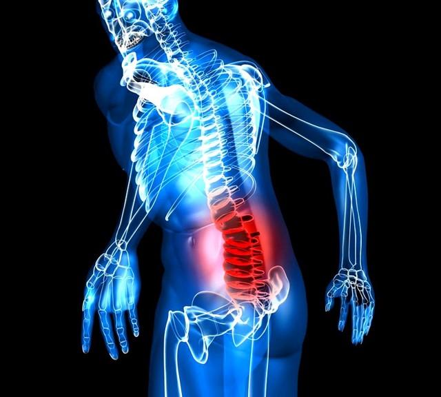 Грыжа позвоночника поясничного отдела - лечение и симптомы