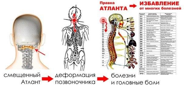 Вправление атланта самостоятельно или у мануального терапевта