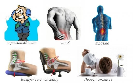 Острый хондроз - причины приступа, симптомы и методы лечения