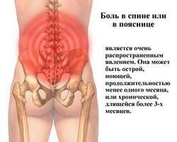 Появление боли в области поясницы - причины и лечение