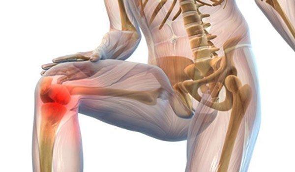 Хондропротекторы при артрозе коленного сустава - список лучших