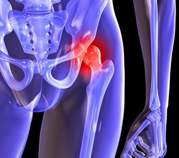 Ушиб тазобедренного сустава - симптомы и лечение