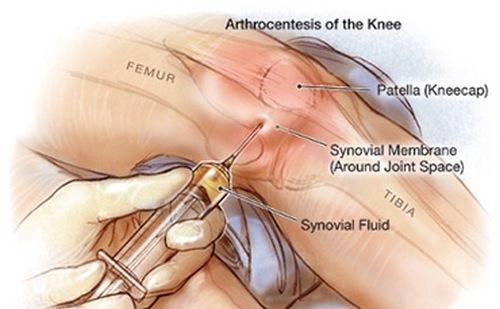 Хронический артрит - что это такое, симптомы и лечение