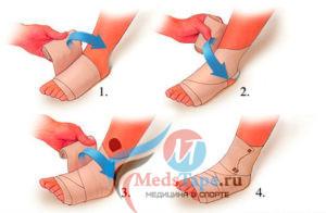 Эластичный бинт на голеностопный сустав - как правильно наложить