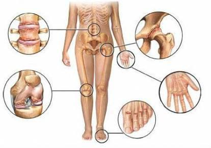 Лечение артроза и остеоартроза - лучшие методики