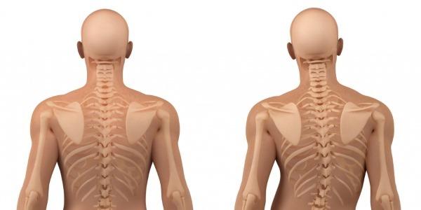 Сколиоз позвоночника - что это такое, симптомы и лечение