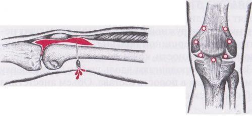 Боль в колене сбоку с внешней стороны - причины и лечение