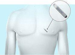 Синдром Апера - что это такое и как лечить патологию?