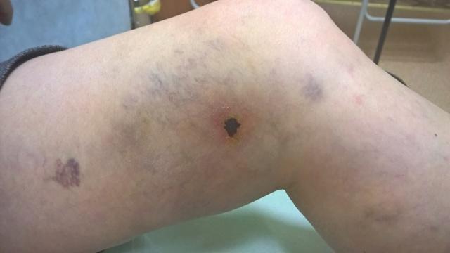 Мази при артрозе коленного сустава и тазобедренного - список