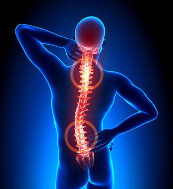Серонегативный спондилоартрит - что это такое и как лечить