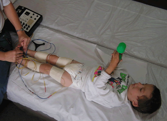 Варусная деформация коленных суставов у детей и взрослых