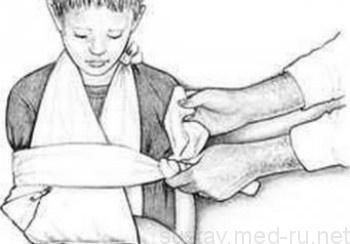 Вывих руки у ребенка - что делать и как правильно лечить