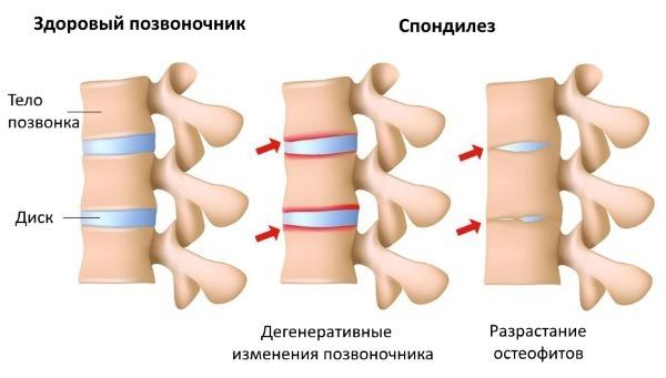 Гимнастика при спондилезе пояснично-крестцового отдела позвоночника