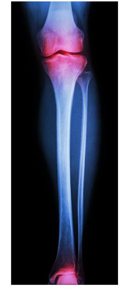 Коксартроз коленного сустава - что это такое, симптомы и лечение