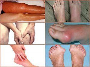 Полиартрит ног - симптомы и лечение у взрослого и ребенка